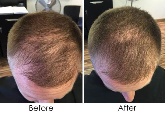 Viviscal Men's Hair Growth Supplements before and after