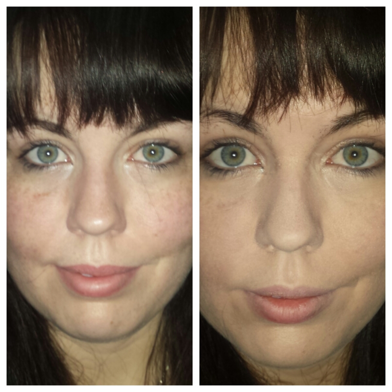 dermablend before and after